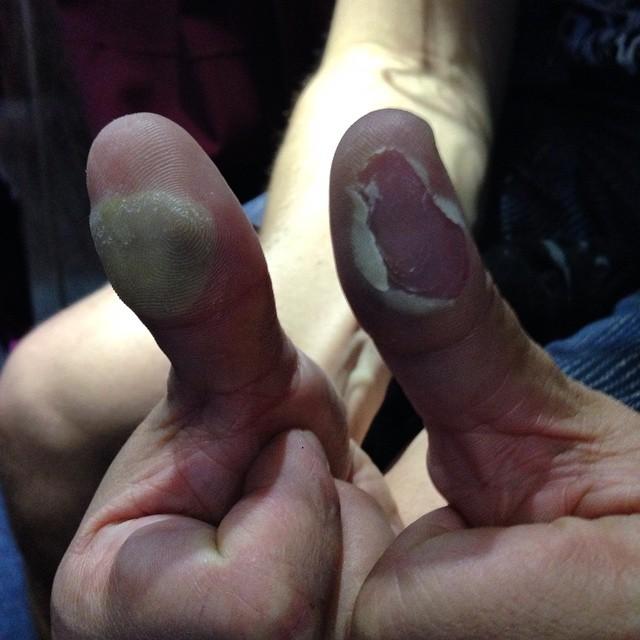Ben Koller se deja los dedos tocando